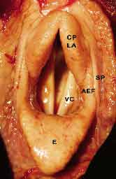 Normal laryngeal anatomy (cadaver larynx): CPLA - corniculate process of the left arytenoid cartilage. SP - pillar of the soft palate. AEF - left aryepiglottic fold. VC - left vocal cord. E - epiglottis.