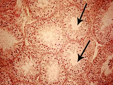 Histopathology of a hypoplastic testis from a buffalo bull. Arrows show seminiferous tubules with partially lacking spermatogenic epithelium lined with empty Sertoli cells. (Photo courtesy Prof. William Vale).