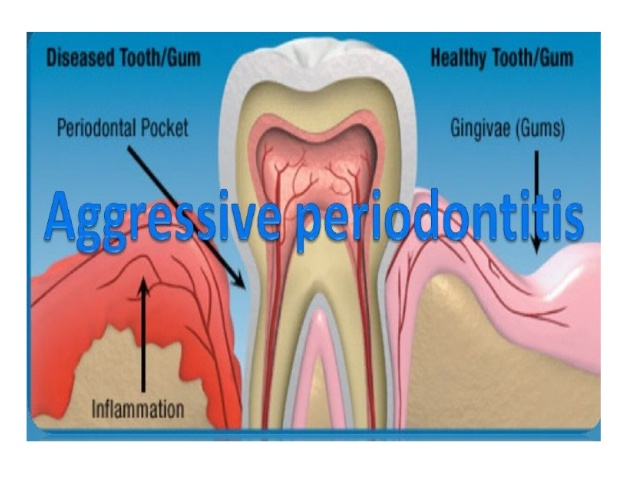 juvenile-periodontitis-9-638.jpg