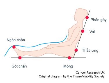 Các khu vực da có nguy cơ bị tổn thương cao nhất do loét áp lực phụ thuộc vào việc bạn đang nằm hay ngồi.