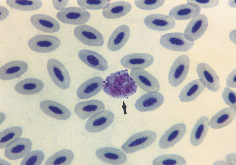 These eosinophil (arrow) granules are well stained, irregular in shape and size, stained purple or dark purple