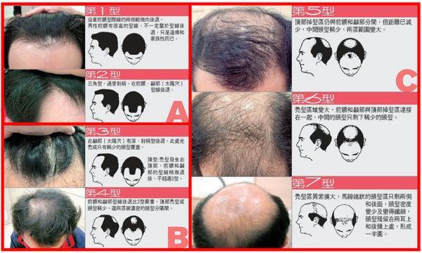 「掉髮」男的女的都會遇到的問題~ (9).jpg