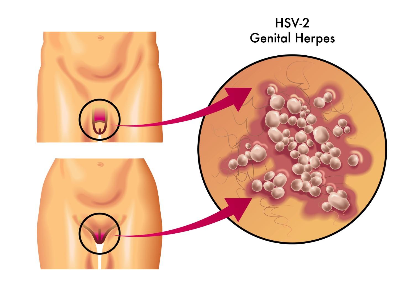 HSV-2 thường gây bệnh trên đường sinh dục