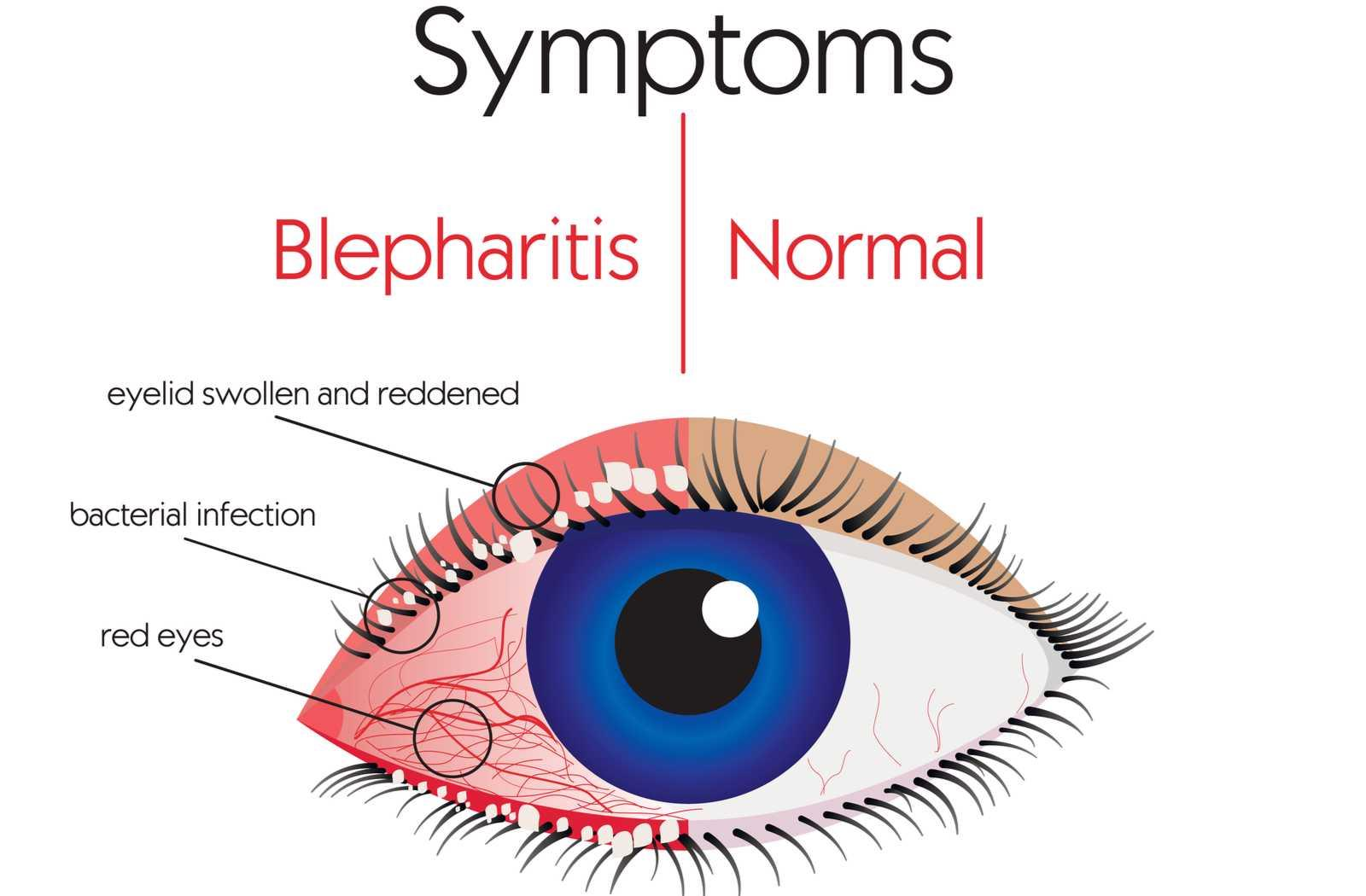 What Are the Causes of Blepharitis? | Park Slope Eye