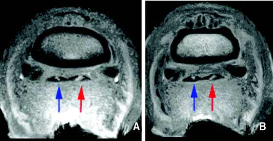 (A and B) T1-weighted transverse images at the mid aspect of the second phalanx that were acquired using a Hallmarq distal limb scanner (0.27 T).