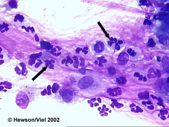 Neutrophils (arrows) trapped in mucus from BAL. Wright-Giemsa stain. Magnification: 1000X.