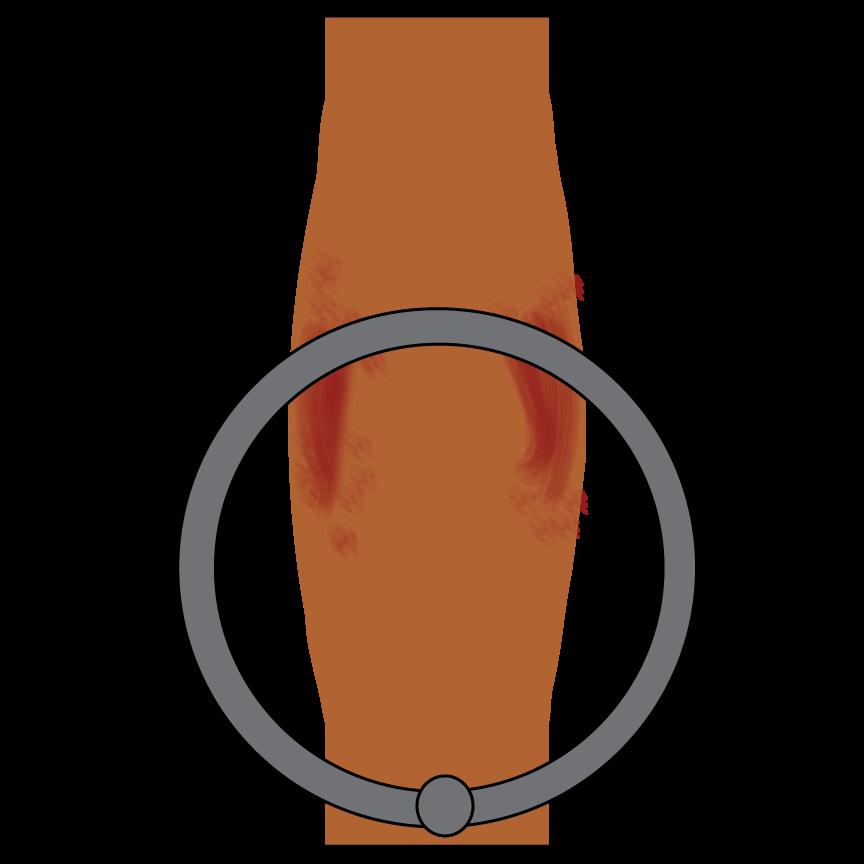 swollen-ring.png