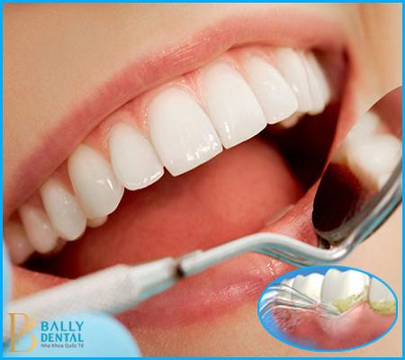 Quá trình lấy cao răng bằng sóng siêu âm tiêu chuẩn