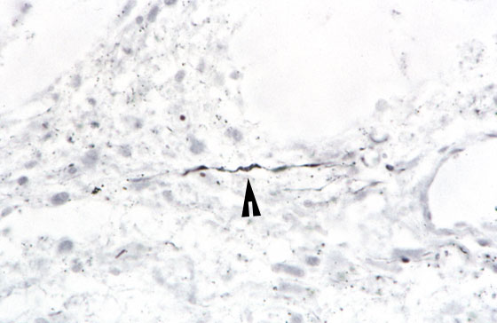 Intact nerve fiber (arrowhead) within cavitation