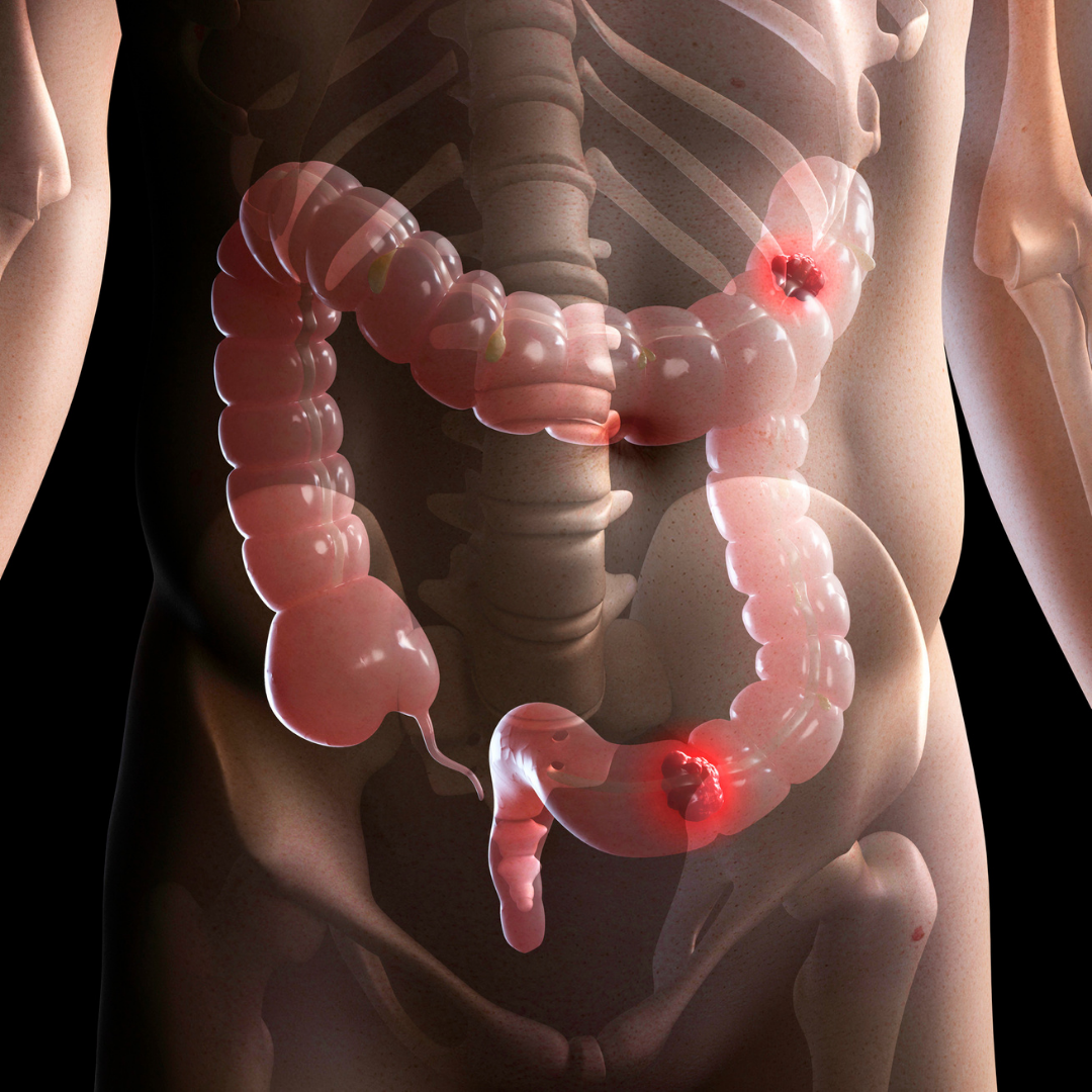 Irregular bowels