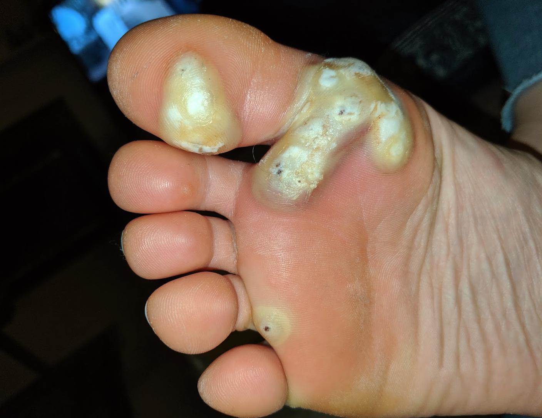 wart treatment with cantharidin limbrici si oxiuri