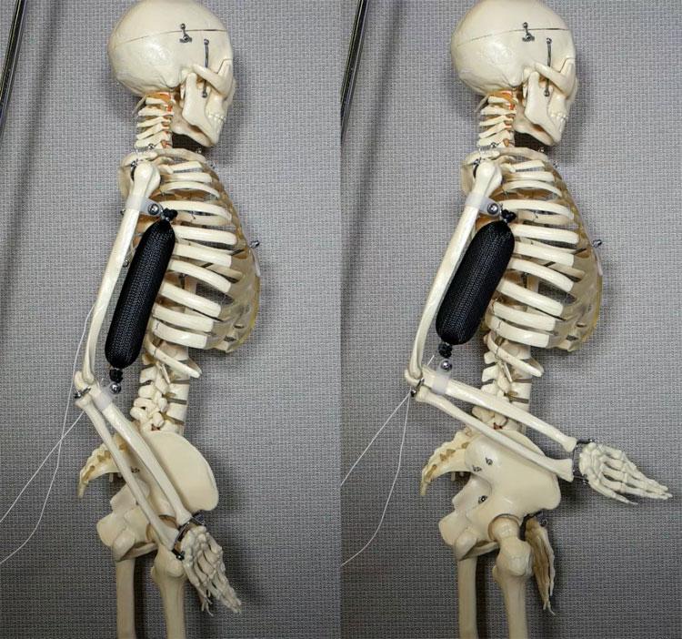 Cơ bắp nhân tạo được sử dụng để nâng cánh tay của bộ xương lên 90 độ.