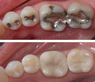 Trám răng sâu giá bao nhiêu và phương pháp nào tốt nhất? 1