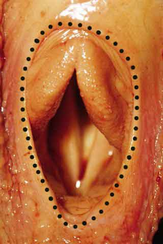 In this view of the cadaver larynx, the epiglottis is no longer visible as a result of a dorsal displacement of the soft palate. The dotted circle outlines the border of the ostium intrapharyngeum or 'buttonhole' of the soft palate.