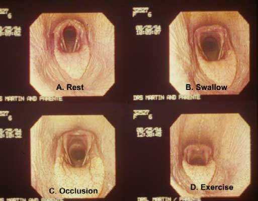 The exercising appearance of the larynx and pharynx (D) is most similar to the appearance of the larynx and pharynx immediately after swallowing (B). The resting view demonstrates minimal abduction of the arytenoids (A), and the appearance during nasal occlusion demonstrates pharyngeal collapse (C).