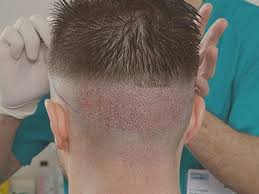 Traşlı saç ekimi