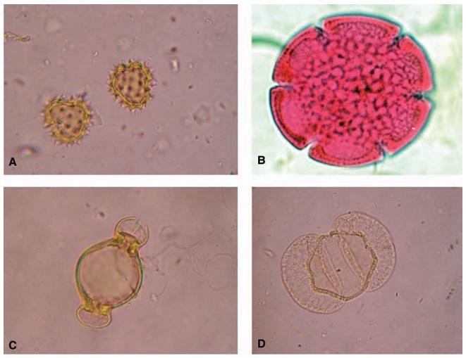 Рисунок 1 – Морфологическое разнообразие пыльцевых частиц, увеличение 400X: (A) Bellis perennis; (B) Reevsiapolis reticulates; (C) Fuchsia; (D) Prumnopitys taxifolia