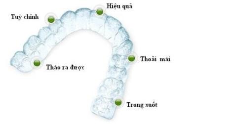Niềng răng Invisalign là gì? Hiệu quả mang lại như thế nào?