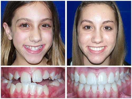 Niềng răng tháo lắp là gì và có hiệu quả không? - Nha khoa Bally 1