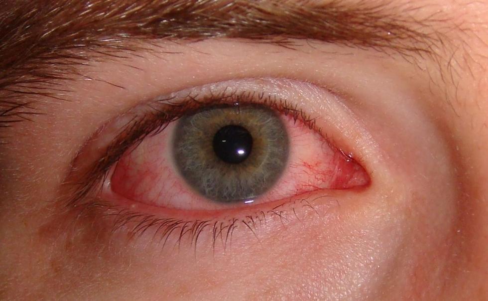 viêm giác mạc do amip acanthamoeba