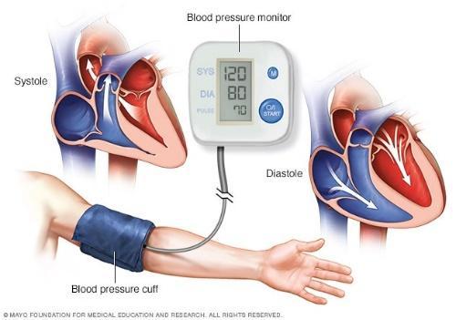 Resultado de imagen de tensión arterial