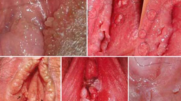 Mọc mụn bọc ở môi lớn vùng kín do bệnh sùi mào gà