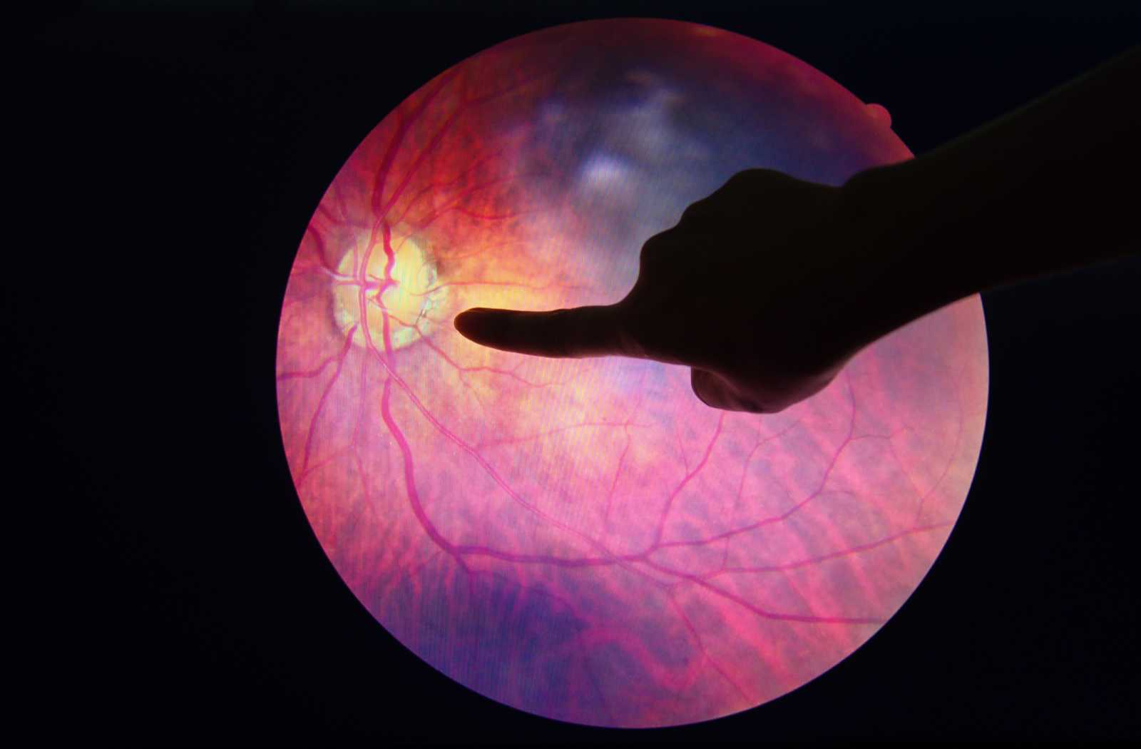 diabetic eye condition on retinal imaging display with black background