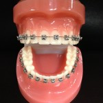 Self-Ligating-Metal-Braces-cropped-150x150.jpg