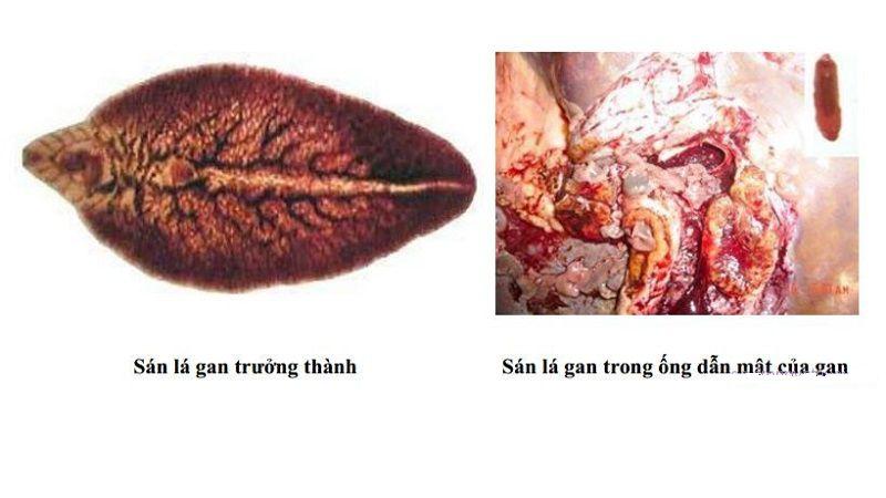 Sán lá gan trong ống dẫn mật