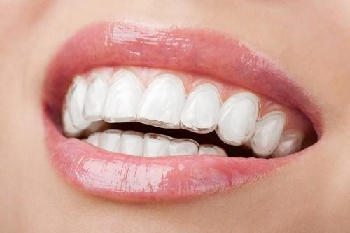 Tại sao niềng răng mắc cài tự buộc được khách hàng lựa chọn? 1