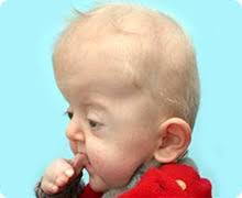 Image result for ultrasound child with apert syndrome