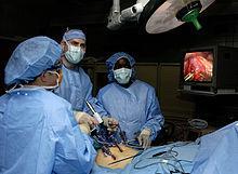Image result for laparoscopic Appendix surgery  wikipedia