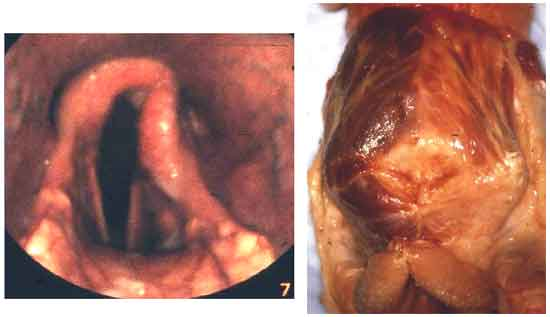 Neurogenic muscle atrophy of the larynx viewed by endoscopy (left) and post-mortem (right).