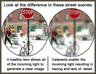 What causes cataracts?