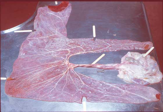 The chorioallantoic, cord, and amnion should routinely be samples at seven sites, and each tissue should be clearly labeled.