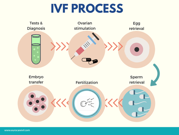 Consult to Ziva Fertility Center to know what is the average cost of ivf treatment in Hyderabad, the best fertility hospital near Kompally