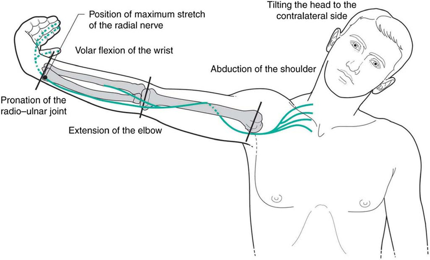 RNT as first represented by Von Lanz and Wachsmuth6. Note the similarity between Mills manipulation pre-manipulative stretch and this maneuver. From: Shacklock 5, Clinical Neurodynamics, Elsevier, with permission, after Von Lanz and Wachsmuth 6, Praktische Anatomie, Springer Verlag, Berlin. (iii) Radial neurodynamic test (von Lanz T and Wachsmuth W 1959 Praktische Anatomie, Springer-Verlag, Berlin, p. 47, with permission).