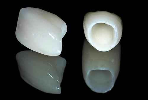 Bọc răng sứ cho răng thưa được rất nhiều người ưa chuộng 1