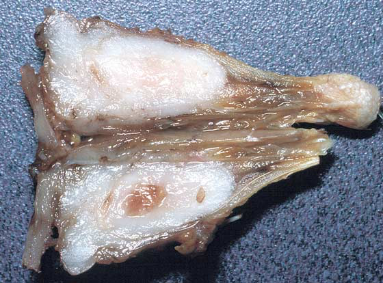 Deeply located fibrosarcoma replacing soft tissue and bone
