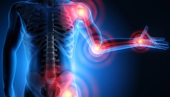 Thoái hóa khớp ảnh hưởng hưởng tới sức khỏe và sinh hoạt của người bệnh