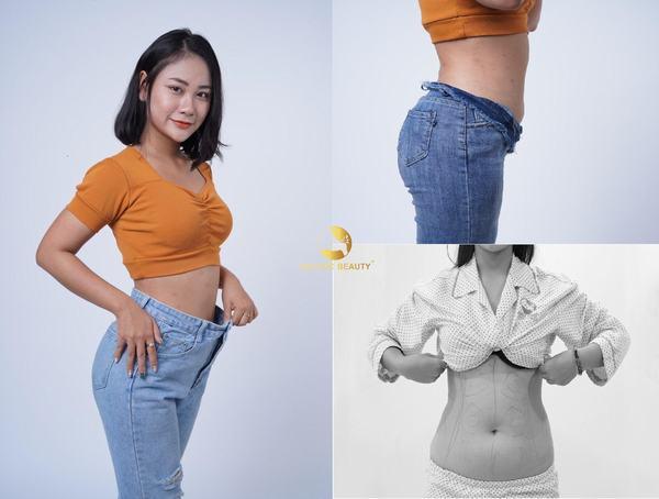 hut-mo-cay-mong-ultra-body-shape