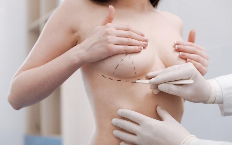Phẫu thuật ngực từ đường lằn ngực