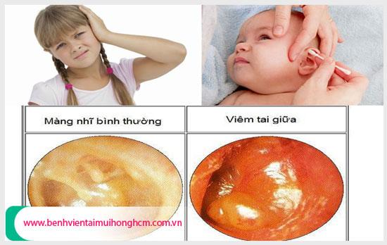 Làm sao khi trẻ nhỏ bị viêm tai giữa ứ dịch?