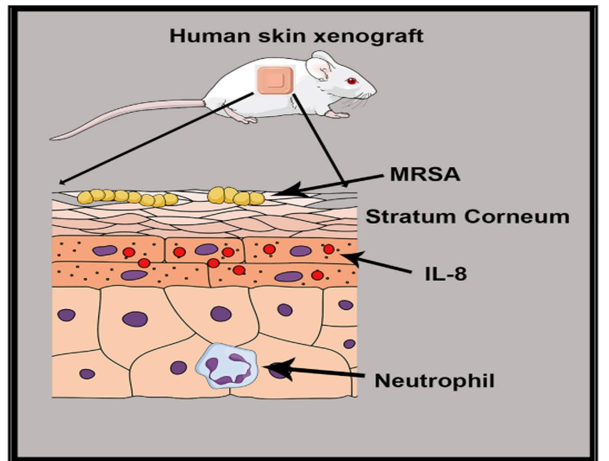 puedes tener mrsa sin infección de la piel