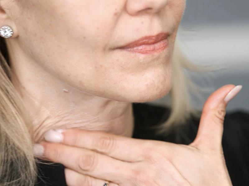 Các nguyên nhân gây lão hóa vùng da cổ sớm