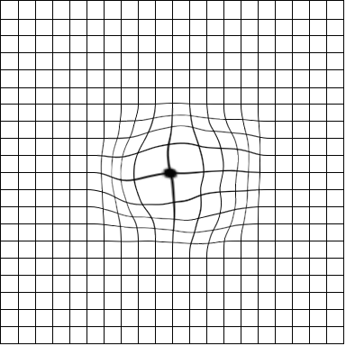 Example of what Amsler grid lines can look like with macular degeneration