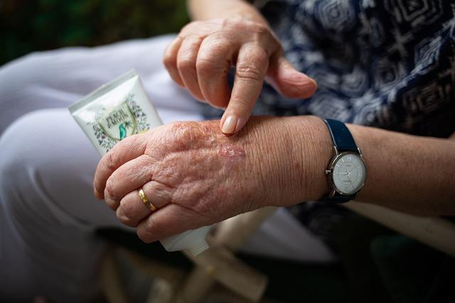Hand Cream, Elderly, Skin Care, Grandparent