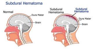 Subdural-Hematoma-photos.jpg