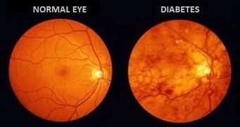 Image result for diabetic and retinal exam