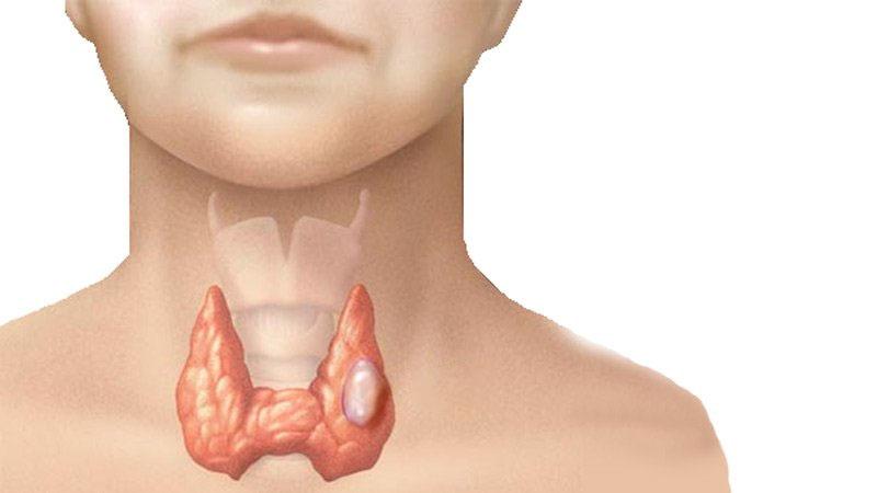 An Giáp Vương - Giải pháp mới cho bệnh nhân u tuyến giáp, bướu cổ - Ảnh 1
